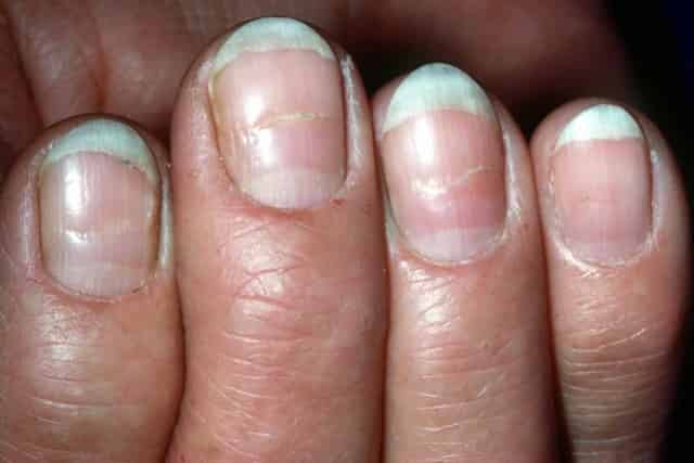 Deep Horizontal Grooves In Fingernails Are Know As Beau S Lines