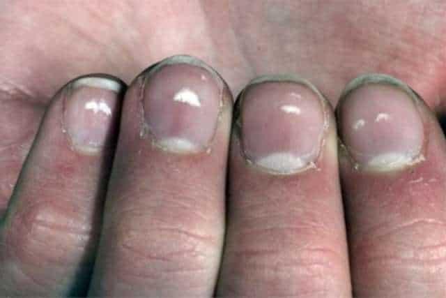 Ridges in fingernails: Muehrcke's lines