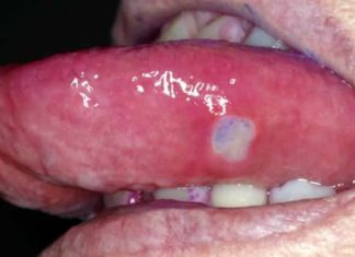 A canker sore on tongue