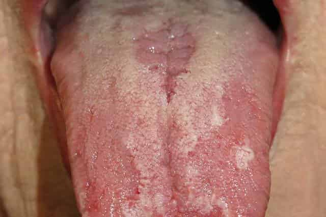 Glossitis may be the cause of sores in mouth