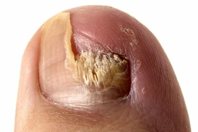 How To Treat Black Toenails Naturally