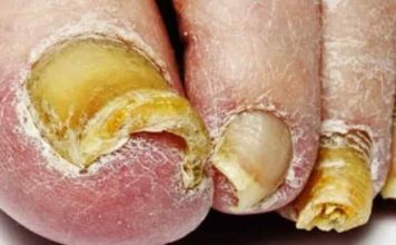 Signs, symptoms of toenail fungus - distorted shape, crumbly, discolored ( white, black or yellow or green)