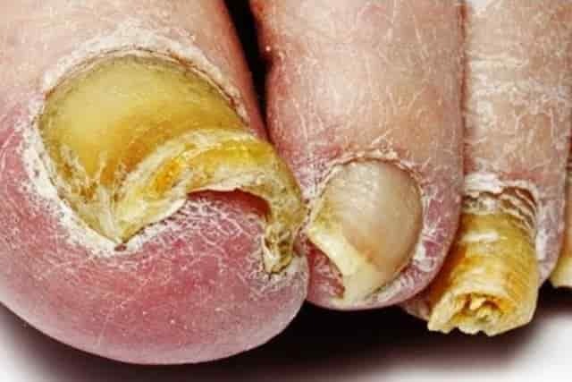 Toenail fungus pictures causes symptoms get rid cure care signs symptoms of toenail fungus distorted shape crumbly discolored white sciox Gallery