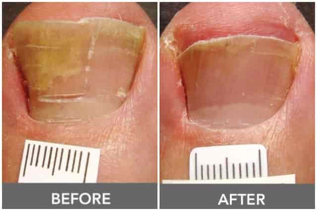 Toenail Fungus Pictures Causes Symptoms Get Rid Cure