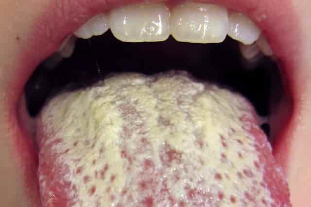 Ulcer on tongue - oral thrush
