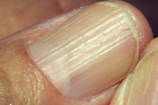 Vertical ridges in thumbnails