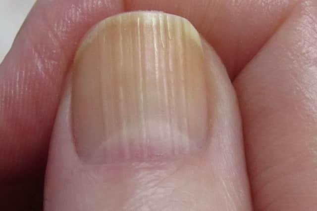 Vertical ridges in fingernails