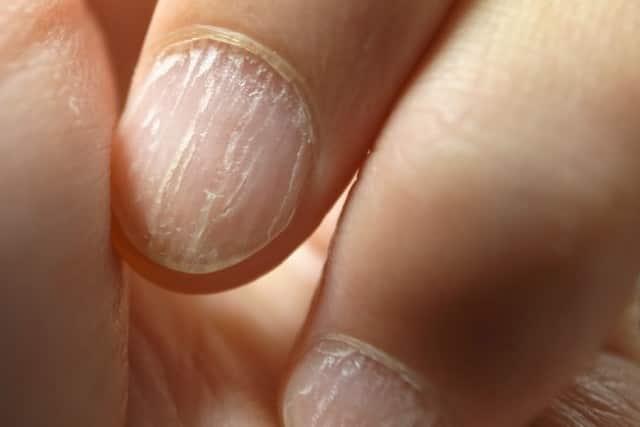 White ridges in fingernails