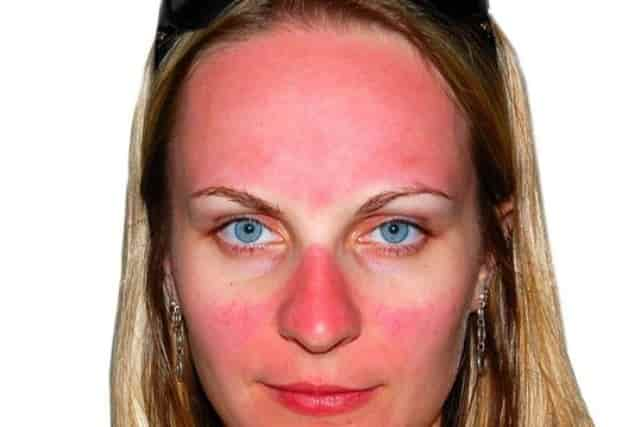 White spots on face - sunburn