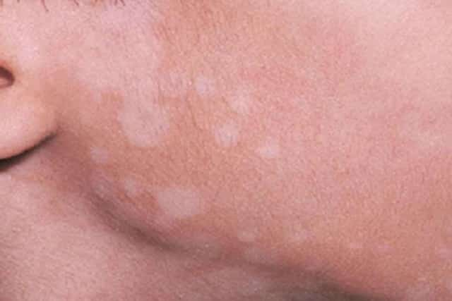 White spots on face - tinea versicolor