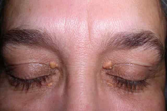 White spots on face - xanthelasma