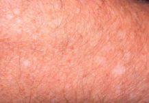 White spots on skin - idiopathic guttate hypomelanosis (sun spots)