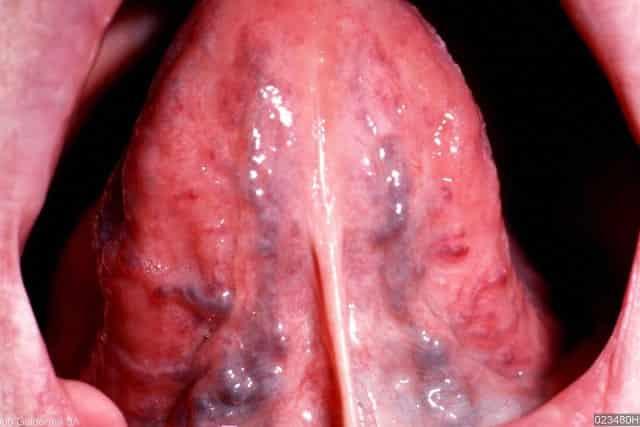 Black spots on tongue - angiokeratoma