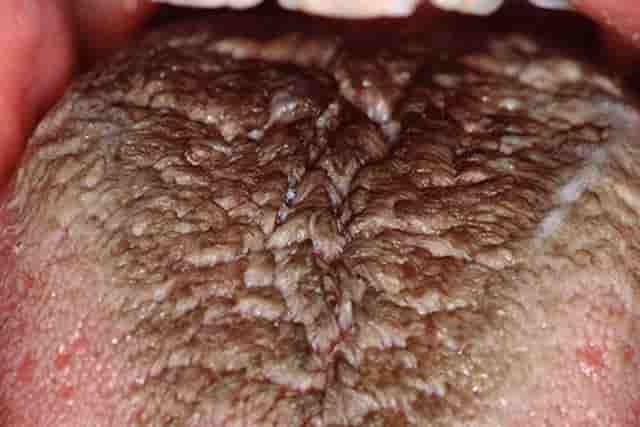 Black spots on tongue - hairy tongue