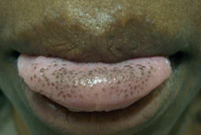 Black spots on tongue - hyperpigmentation