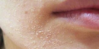 Dry patches on face - allergic reaction