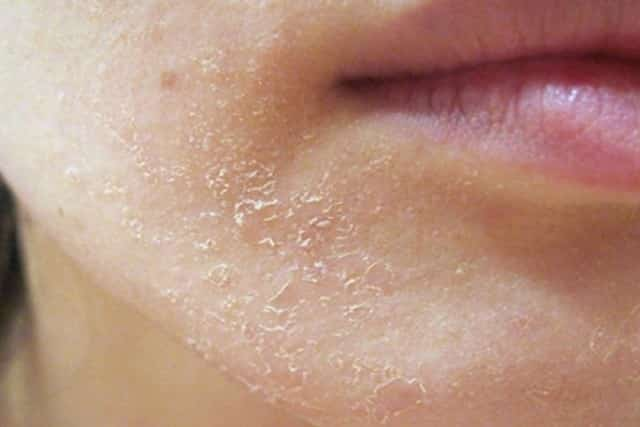 Red dry flaky skin on chin