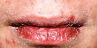Dry patches on lip - chapped lips