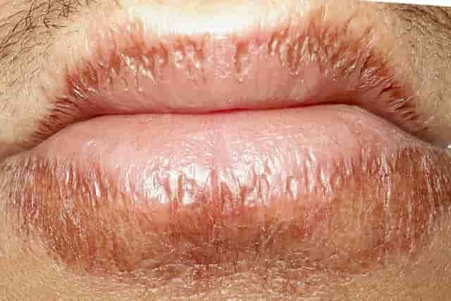 Dry Patches on Lip, Up...