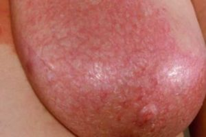 Red spot on breast - mastitis infection