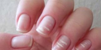 White spots on fingernails may be an indication of nutrient deficiency such as protein, keratin, zinc, calcium and vitamins