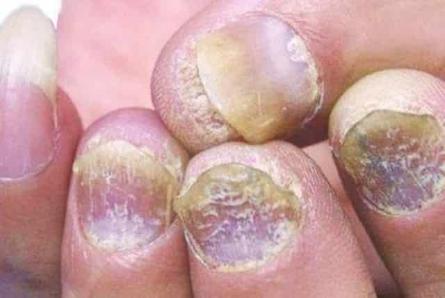 White spots on fingernails may be an indication of underlying health problem