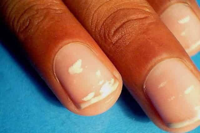 White spots on fingernails may result from injuries incurred from striking, squeezing or nail-biting