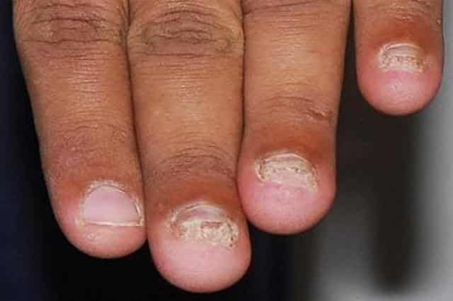 White spots on fingernails may be due to a fungal infection