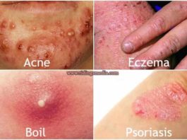 Red spots on skin - acne, eczema, boil & psoriasis