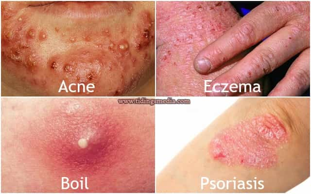 Red Spots On Skin Itchy Or Not Small Pictures Causes