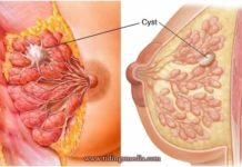 Lump in breast - cyst